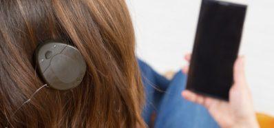 ¿Sabes qué es un Implante Coclear?