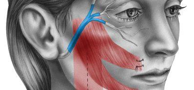 La Otitis Media puede desencadenar Parálisis Facial